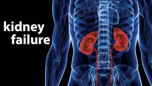 kidney-fail