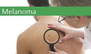 science melanoma viagra